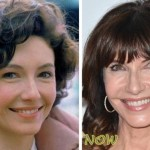 Mary-Steenburgen-Plastic-Surgery