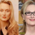 Maryl-Streep-Plastic-Surgery-Before-and-After