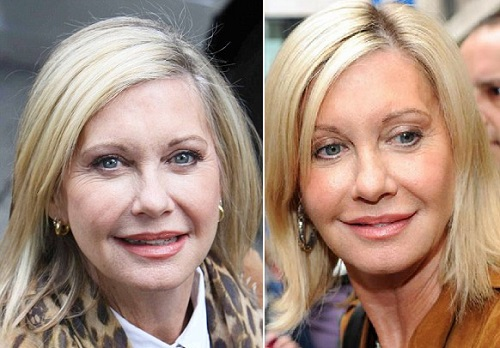 Olivia-Newton-John-Plastic-Surgery-Before-And-After