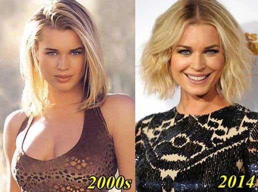 Rebecca-Romijn-before-and-after-plastic-surgery
