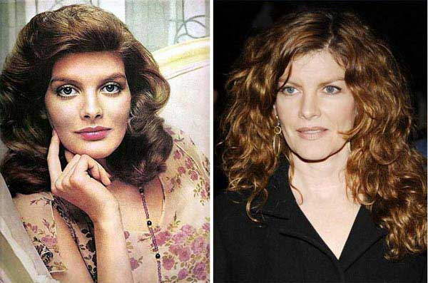 rene-russo-plastic-surgery