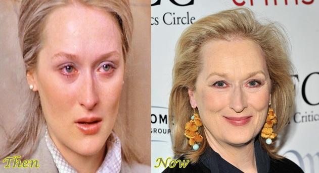 Meryl-Streep-Plastic-Surgery