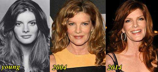 Rene-Russo-Plastic-Surgery-Before-and-After