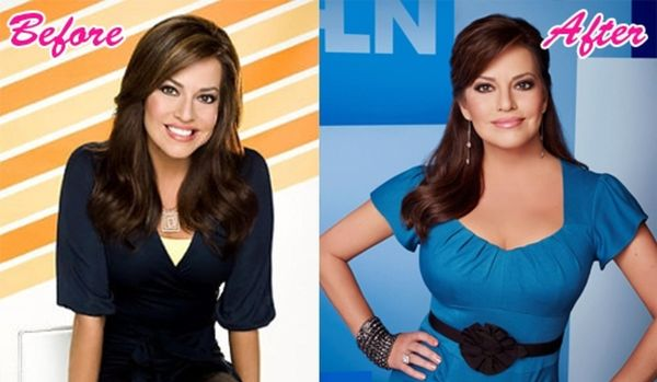robin-meade-plastic-surgery-before-after